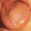 淡紅(正常な舌)